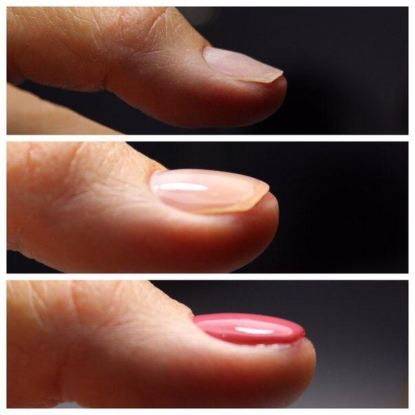 Поэтапное нанесение базы для гель-лака: выравнивание ногтей