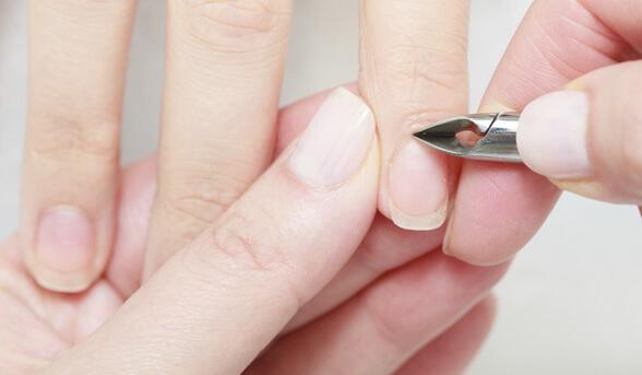 фото - обрезание кутикул вокруг ногтя